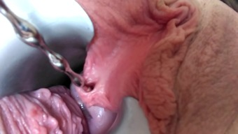 peehole stretching piece first
